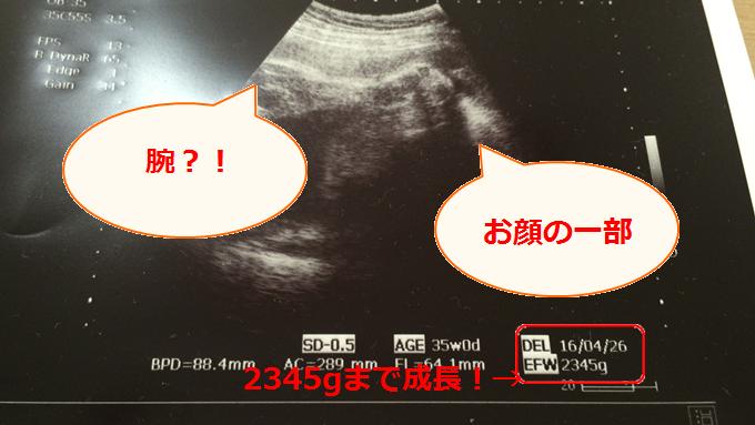 36週検診で赤ちゃんが下がっている